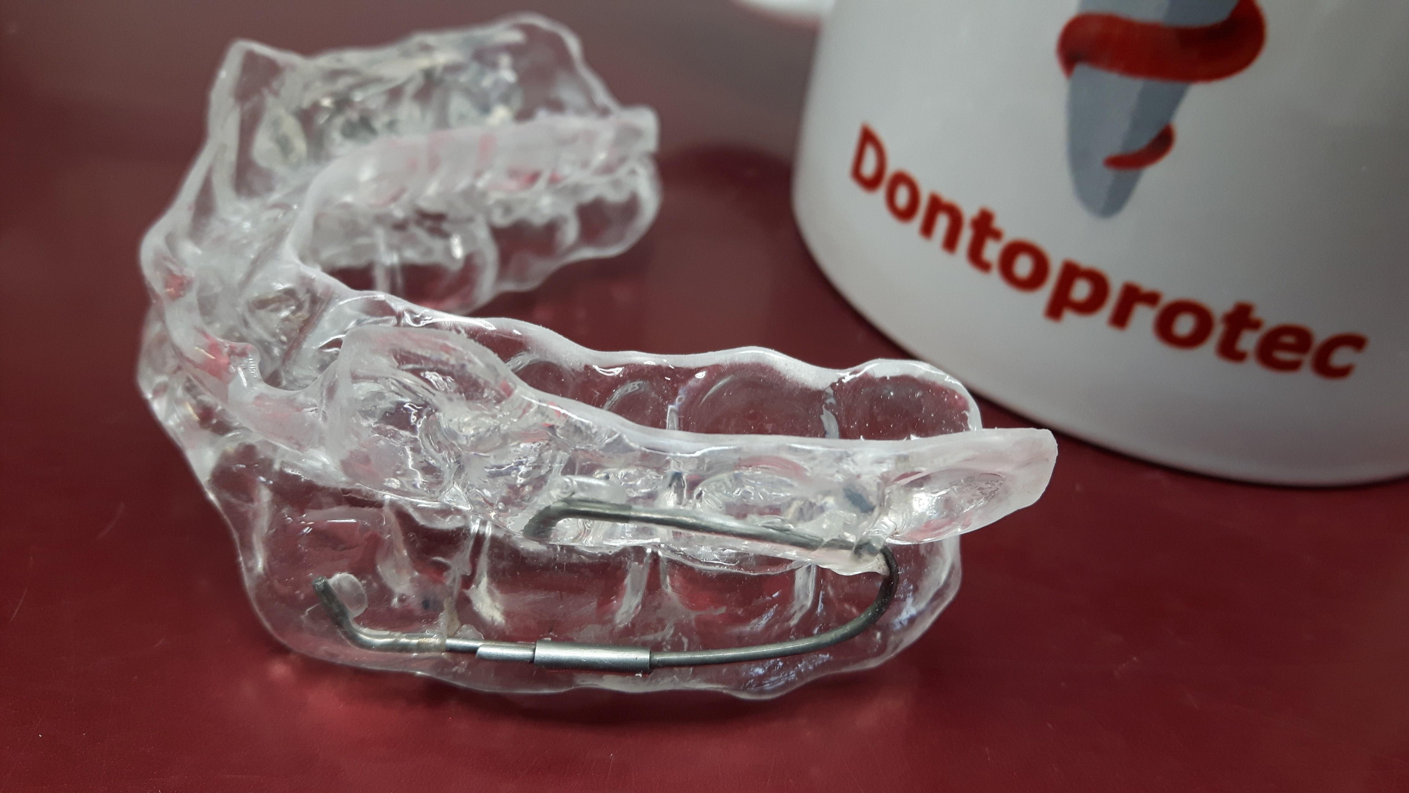 Orthèse d avancée mandibulaire